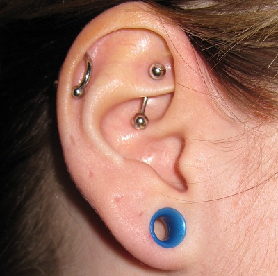 I Had An Umbilical Hernia Repair In 2007 And To Take All The Jewelery Out Of My Ears Just Never Put It Back Shrunk Up A