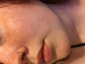 "20g 5/16""  Nose Hoop -- Photo # 80261"