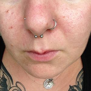 "Nose Hoop 18g 5/16""  -- Photo # 61202"